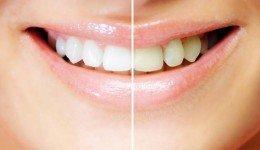 Tannblekingsbehandling