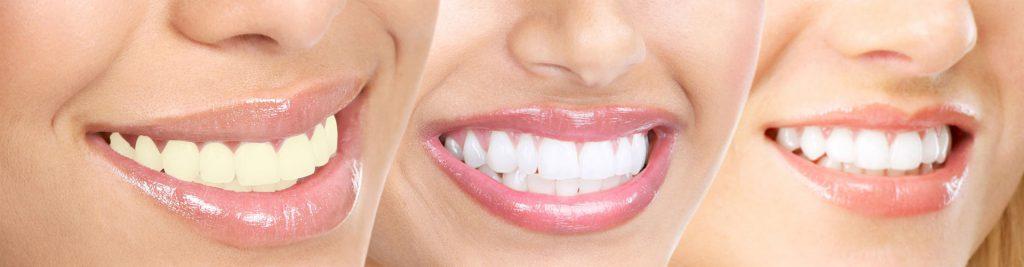 Hvordan virker tannbleking