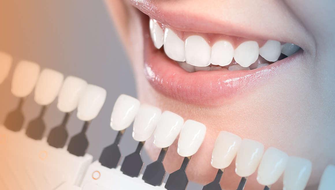 Hva er egentlig tannbleking