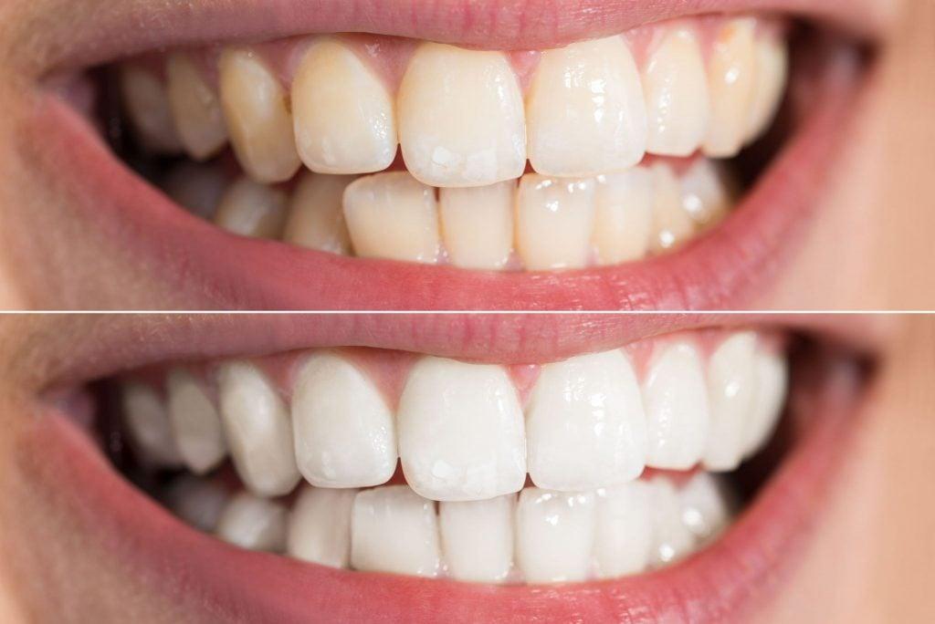 Misfarging av tenner
